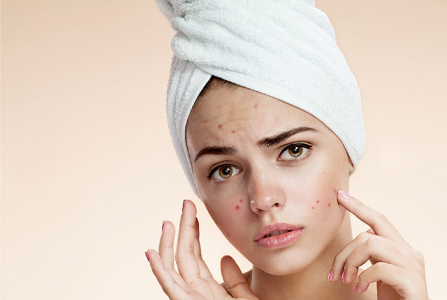 Laser Skin Treatments: Benefits, Safety, Cost and Procedure.